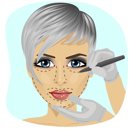in vain: Guide lines for surgical incisions on a patient female face on white background Illustration