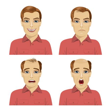 白い背景の上の毛損失のさまざまな段階を持つ若者