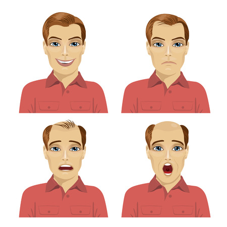 young man with different stages of hair loss on white background Vectores