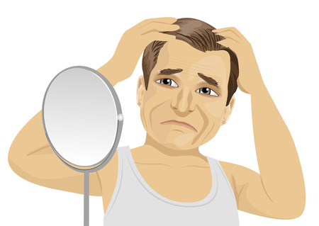 calvicie: Hombre maduro que mira en un espejo preocupado por la pérdida del cabello