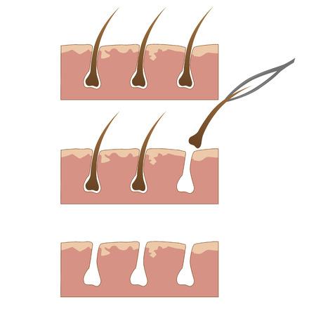 Esempio di rimozione dei capelli dalla pelle con una pinzetta su sfondo bianco Archivio Fotografico - 60217998