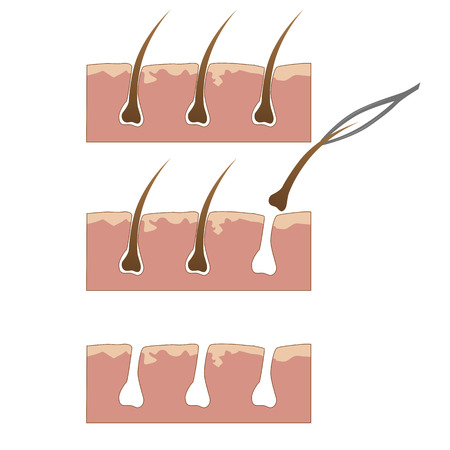 aesthetics: Example of hair removal from skin with tweezers over white background Illustration