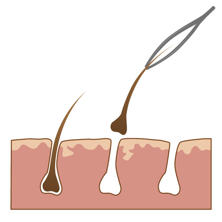 Example of hair removal from skin with tweezers over white background Vettoriali