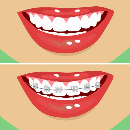 dental braces, before and after. Close up illustration