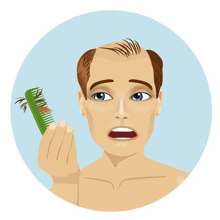 calvicie: Hombre joven preocupado por la pérdida del cabello que sostiene un peine mirarlo