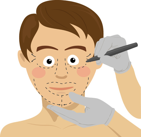 Surgeon drawing marks on male face. Plastic surgery concept Illustration