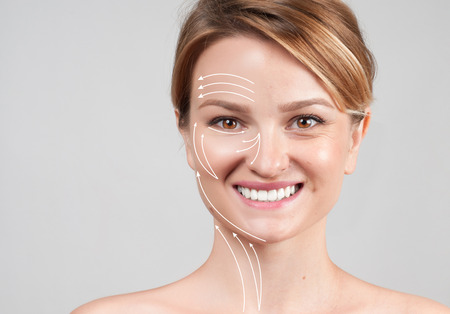 Concept of skin rejuvenation. Face lift anti-aging treatment - woman with massage lines showing facial lifting effect on skin  스톡 콘텐츠