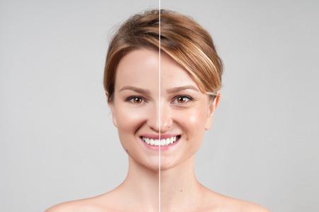 Concept de rajeunissement de la peau. Femme avant et après la procédure cosmétique ou plastique, thérapie anti-âge Banque d'images