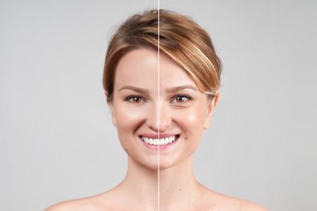 Concept of skin rejuvenation. Woman before and after cosmetic or plastic procedure, anti-age therapy