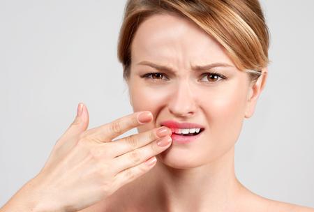 歯の痛み、歯科、歯痛で苦しんでいる女性のクローズ アップ 写真素材