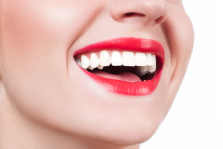 White teeth and red lips. Perfect female smile after bleaching. Dental care and whitening teeth. Stock fotó