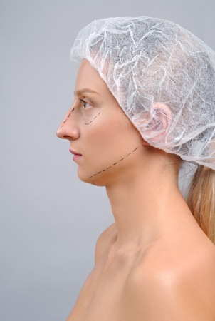 Portrait of female face before plastic surgery. Rhinoplasty. Anti-aging treatment and face lift.  Stock Photo