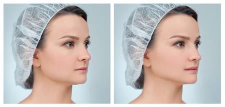 鼻。鼻の整形手術前後の女性の顔の肖像 写真素材