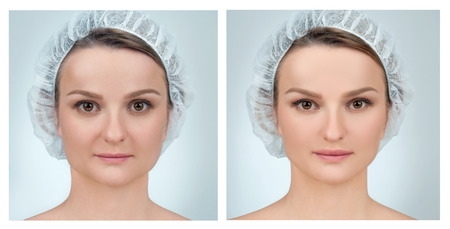 Portrait of female face, before and after plastic surgery. Anti-aging treatment and face lift.