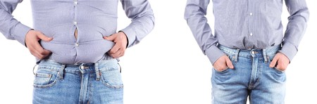 Man Before and after weigh loss. Overweight  fat belly Imagens - 99275379