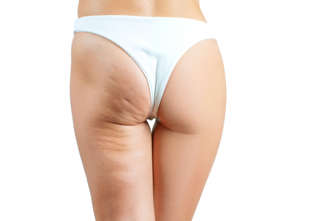 Female buttocks before and after treatment anti cellulite massage. Plastic surgery concept 스톡 콘텐츠