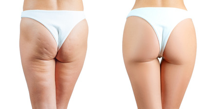 Female buttocks before and after treatment anti cellulite massage. Plastic surgery concept 免版税图像