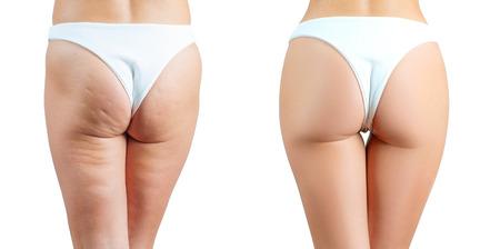 Massaggio anticellulite femminile prima e dopo il trattamento. Concetto di chirurgia plastica