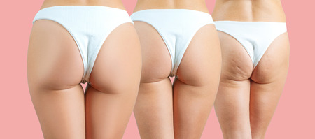 Female buttocks before and after anti cellulite treatment on pastel pink background