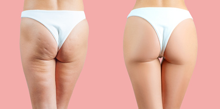 Female buttocks before and after anti cellulite treatment on pink pastel background 스톡 콘텐츠
