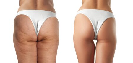 Female before and after treatment anti cellulite massage. Cellulite treatment