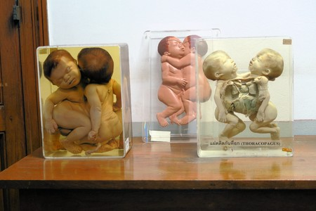 corpses: Conjoined Twins Forensic Exhibit in a Forensic Medicinal Exhibition Editorial