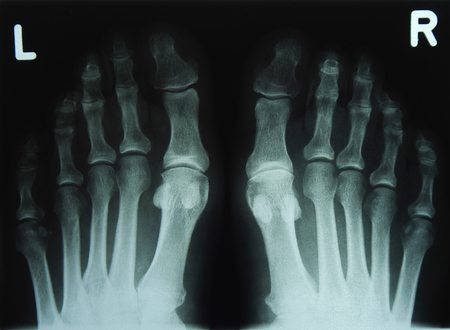 x-ray of feed and toe