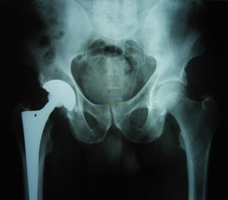 X-ray image of an artificial hip / prothesis