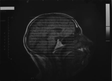 x-ray - head Banco de Imagens