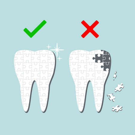 dental pulp: Sick and healthy tooth. Infographics. Vector illustration
