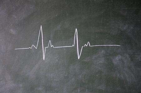 electrocardiogram: ECG disegnato con il gesso sulla lavagna Archivio Fotografico