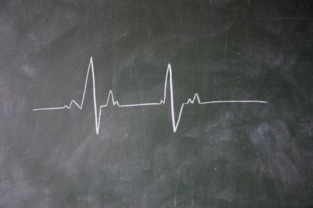 elektrokardiogramm: EKG mit Kreide auf Tafel gezeichnet