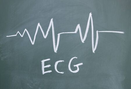ECG drawn with chalk on blackboard photo