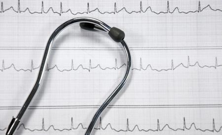 stethoscope and ECG Stock Photo - 17158387