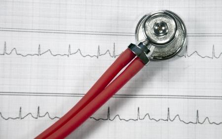 stethoscope and ECG Stock Photo - 17158384