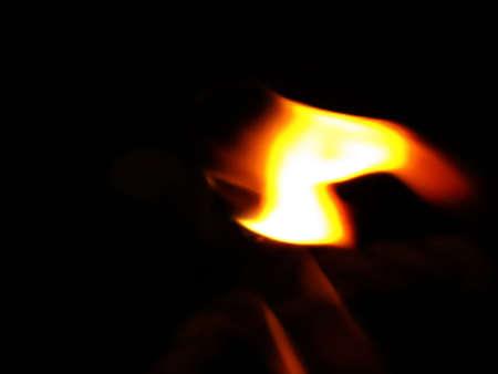 quemadura: quemadura de fuego Foto de archivo