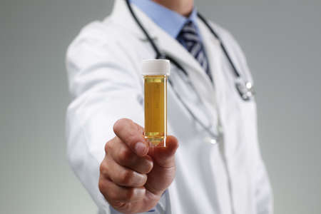 Doctor holding a urine sample for drug test or other medical test Stock Photo