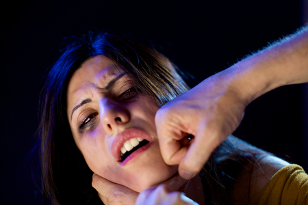 Domestic violence and abuse on woman with bruises and scars Stock Photo
