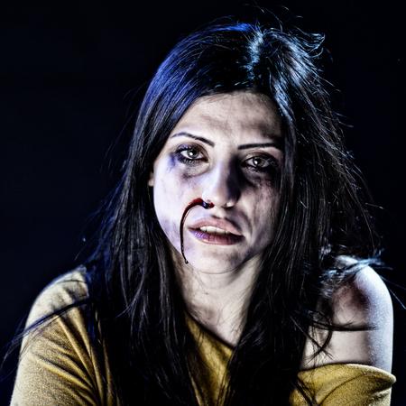 mujer golpeada: Mujer golpeada y abusada en busca desesperada Foto de archivo
