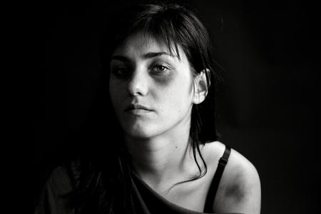 bruised: Sad woman looking in camera