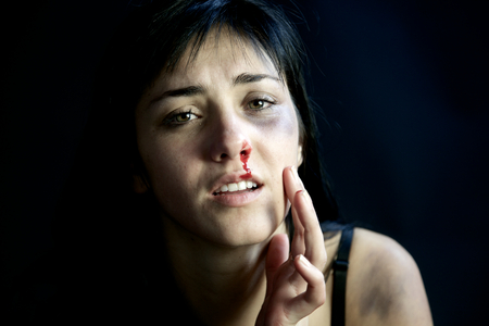 bruised: Sad woman feeling pain after being hit