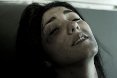 mujer golpeada: mujer solitaria triste con contusiones en la cara