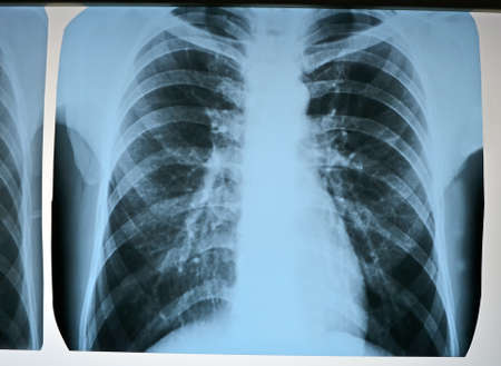 focus on center  pneumonia test scanning, modern x-rays radiography details 版權商用圖片