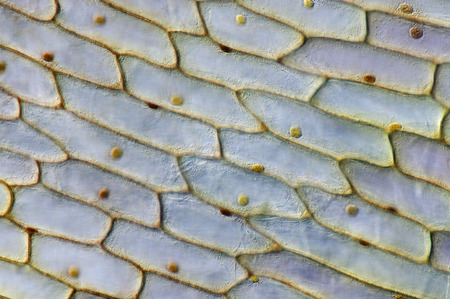 photomicrograph: Cells from fixation to inner membrane from a common onion (Allium cepa), without, but with intravital stainig (tincture of iodine)