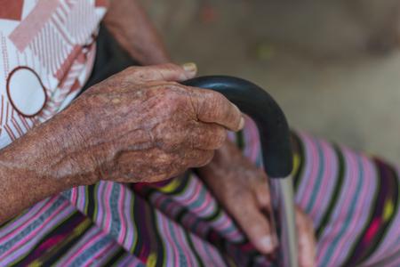 mano anziano: Closeup old hand with crutch Archivio Fotografico