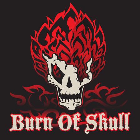 quemadura: quema de cr�neo