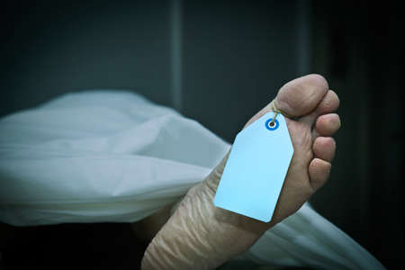 Closeup of foot in a morgue with blank tag hanging from the big toe. Foot clearly shows flaking skin and athlete's foot fungus as well as years of hard use. (body is a model) Standard-Bild