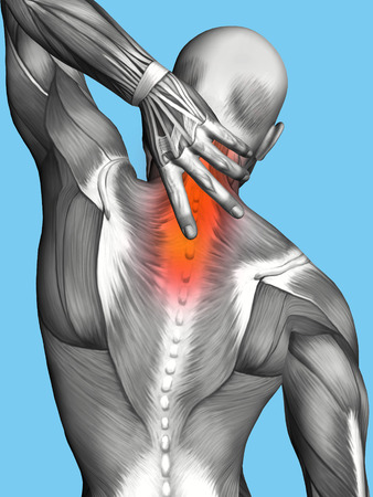 muscle spasm: Upper Back Pain Highlighted in Red