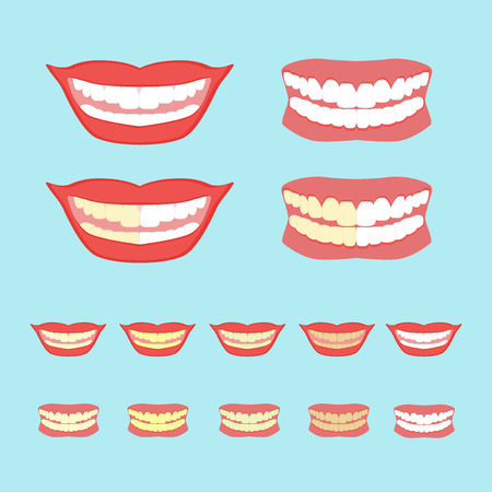 yellow teeth: Whitening teeth illustration isolated on blue background. Dentistry, card concept.