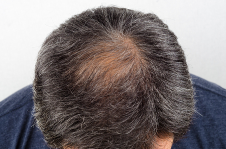 hair loss and grey hair, Male head with hair loss symptoms Stock Photo